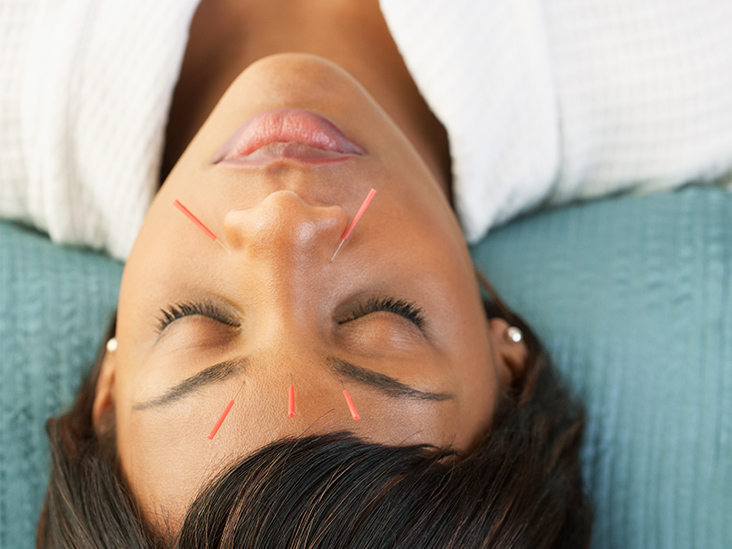 Alternative Treatments for Stroke: What to Know