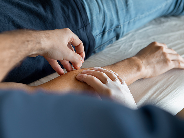 What to Know About Acupuncture for Diabetes